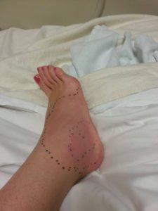 Snakemaggeddon 2011. Spent the night in the ER.